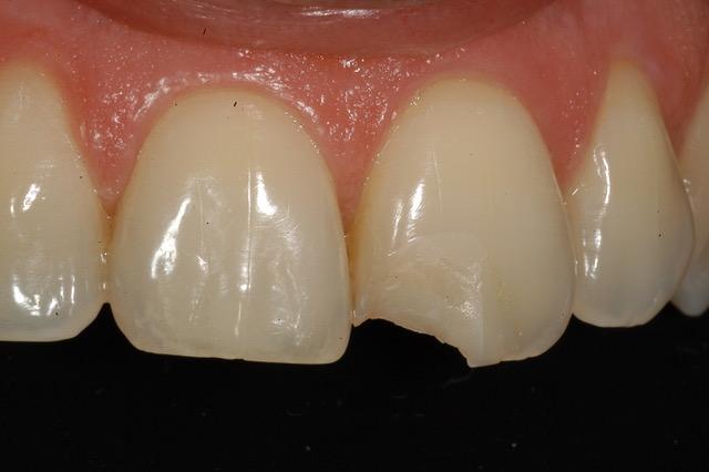 Dente rotto
