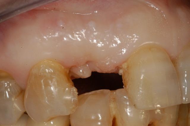 Caduta Dente