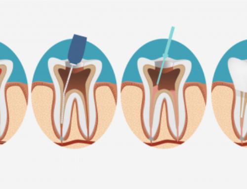 Cosa vuol dire devitalizzare un dente?