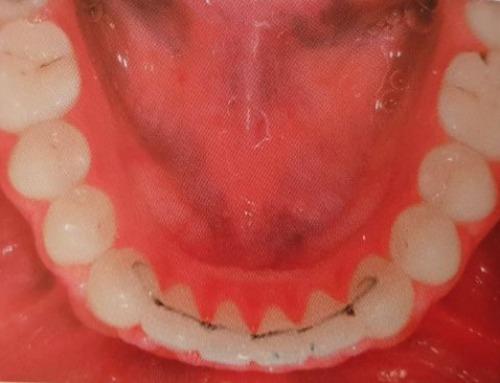 Contenzione a fine trattamento ortodontico: importante perché e per quanto